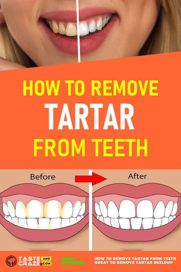 How to Remove Tartar from Teeth #RemoveTartar #RemoveTartarBuildup #TartarBuildup #Tartar #TartarFromTeeth
