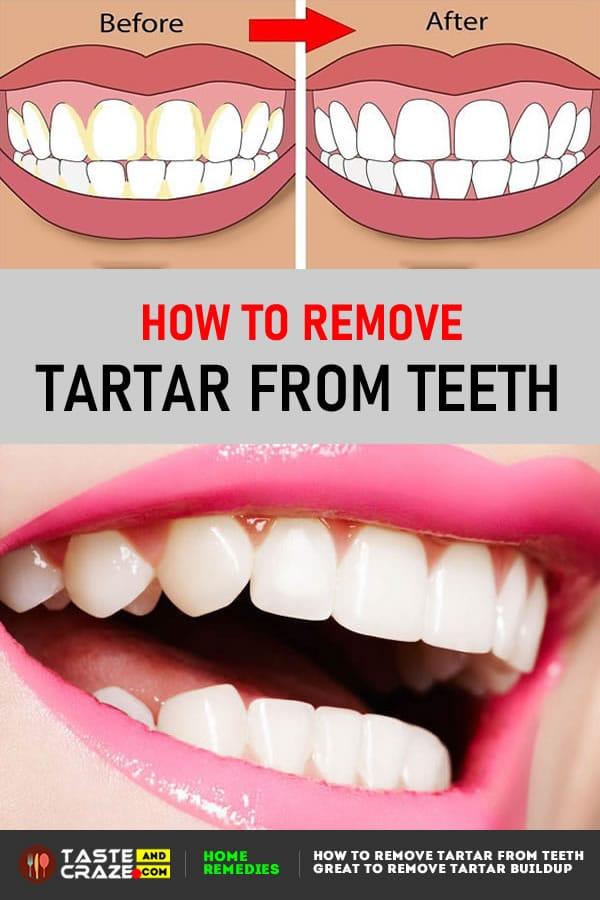 #Tartar #TeethCare #Teeth #TartarBuildup #RemoveTartar #RemoveTartarBuildup #TartarFromTeeth How to Remove Tartar from Teeth