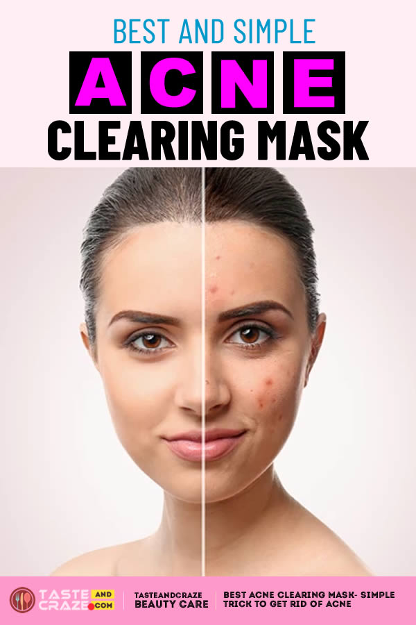 Best acne clearing mask- Simple trick to get rid of acne. #AcneClearingMask #AcneClearing #Acne #BestAcneClearing