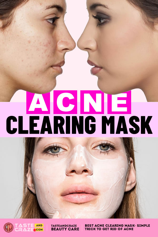 #AcneClearingMask #AcneClearing #Acne #BestAcneClearing Best acne clearing mask- Simple trick to get rid of acne