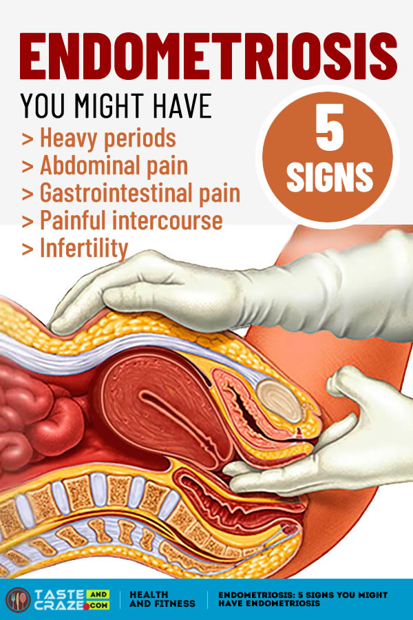 #Endometriosis #EndometriosisSigns #Menstrual 5 signs you might have endometriosis